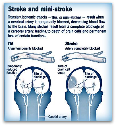 Transient ischaemic attack TIA  Symptoms  NHS