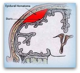 Epidural Hematoma / Traumatic Brain Injury -TBI / Causes