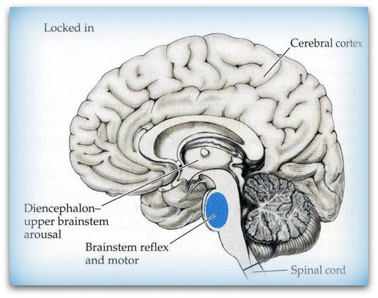 Locked-in Syndrome / Causes of Brain Injury | Braininjury ...