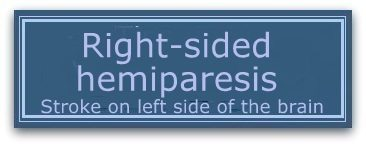 right-sided-hemiparesis.large.jpg