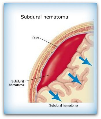 treatment of subdural hematoma with steroids