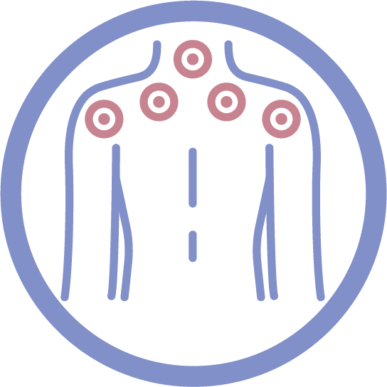 Cupping Therapie, Acupunctuur en Acupressure